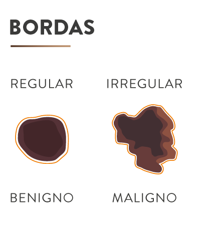 slider-bordas.png
